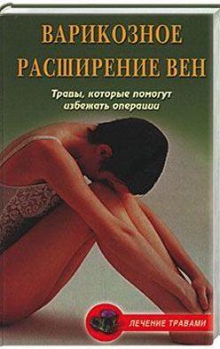 Ольга Абрамович - Варикозное расширение вен. Травы, которые помогут избежать операции