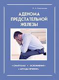 Ирина Калюжнова -Аденома предстательной железы